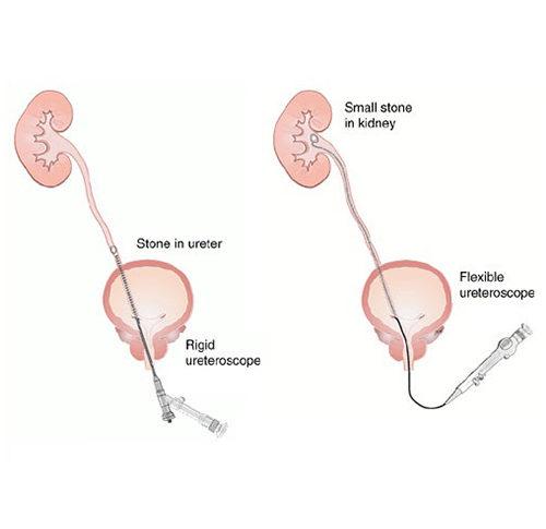 Ureteroscopy rigid vs flexiu